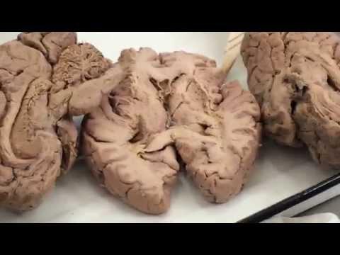 Строение и функции нервной системы человека