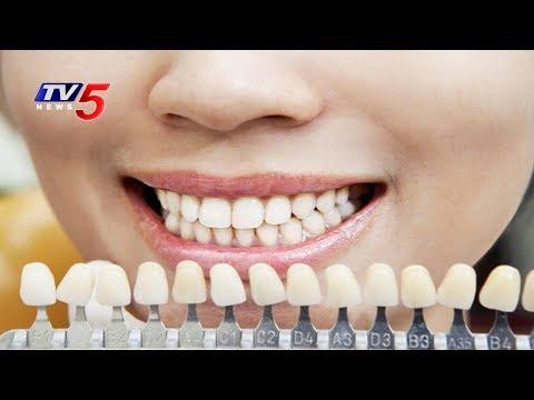 Dental Problems And Advanced Dental Treatments | Clove Dental | Health File