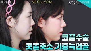 [코끝수술] 코끝성형, 기증늑연골, 콧볼축소 / 과하지…