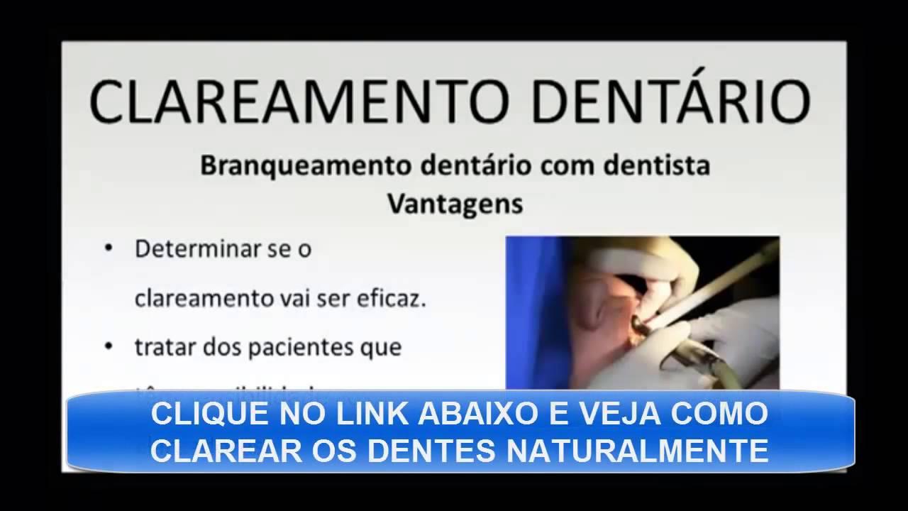 Clareamento Dental Caseiro Aprenda Como Clarear Os Dentes