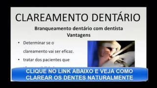 Clareamento Dental Caseiro Viyoutube Com