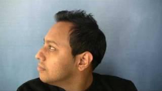 Hair Transplant - Dr Wong - 4826 Grafts - 1 Session