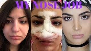 MY RHINOPLASTY / NOSE JOB EXPERIENCE (WITH BEFORE AND AFTER PICTURES) | VLOGSBYAIDA