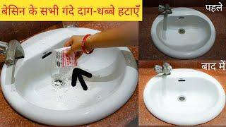 बेसिन में ये चीज़ डाल दें इतना चमकेगा की लगेगा अभी नया लगाया हो।How to Clean Wash Basin Easily??