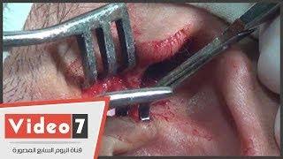 بالفيديو.. إجراء عملية ترقيع طبلة الأذن فى أقل من ساعة