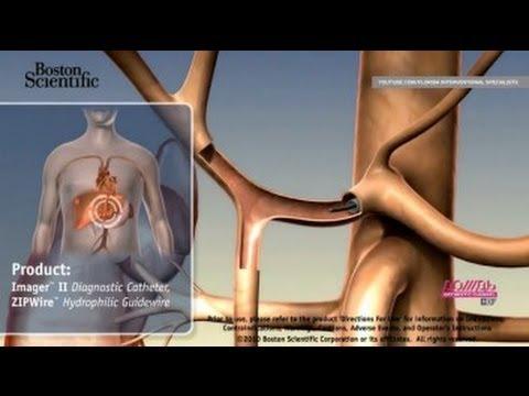 Рак: лечение, причины и симптомы. Способы лечение рака