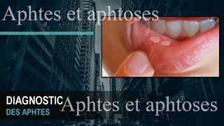 Aphtes et aphtoses : symptômes , etiologie , traitement