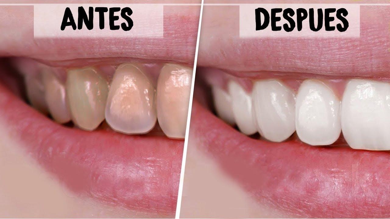 remedios caseros para limpiar dientes manchados