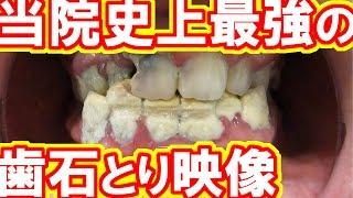 当院史上最強の歯石とりVery heavy tartar removal.This patient was Dental treatment phobia.歯石除去Vol.3(有史以來最厲害的去牙石)