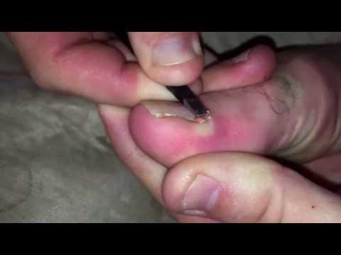 how to cut ingrown toenail v