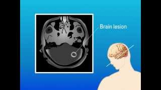 Allergic Bronchopulmonary Aspergillosis (ABPA).