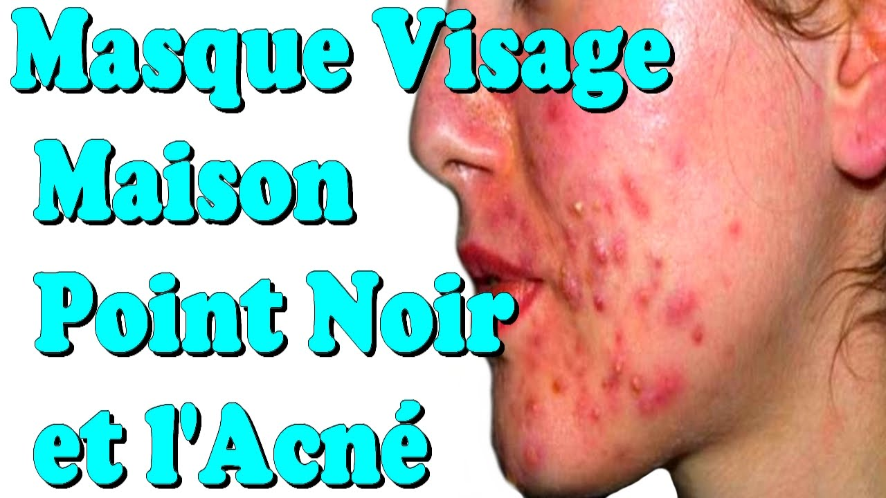 Super masque visage maison point noir et l'acné - YouTube MS28