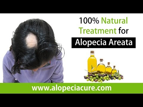 dr-rohit's-naturopathy-for-#alopeciaareata#alopeciaareatatreatment-#alopeciaareatacure