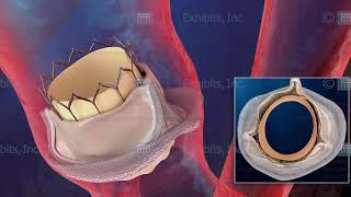Showing Alternative Views with Medical Animation - Placement of a Replacement Aortic Valve