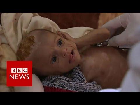 Yemen's war leaves children on the brink of famine - BBC News