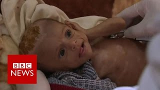 Yemen's war leaves children on the brink of famine   BBC News