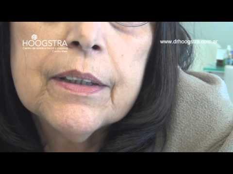 Lesiones vasculares de los labios (15054)