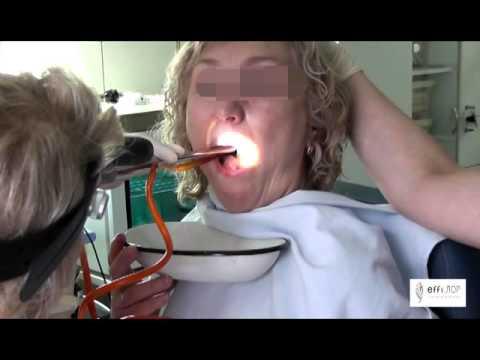 Процедуры на аппарате Тонзиллор в клинике effi