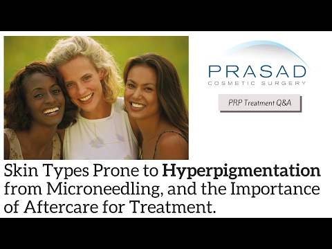 Why Facial Microneedling Causes Hyperpigmentation in Darker Skin, and Importance of Aftercare
