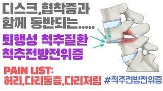 (허리,다리통증,다리저림) 허리디스크,척추관협착증과 동…