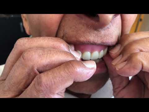 Snap-on-4 teeth 010 @Jewel Dental