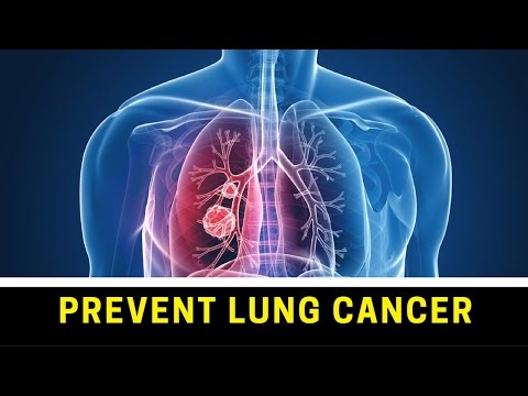 ►-how-to-prevent-lung-cancer-◄-lung-cancer-█-causes-and-solutions-✔