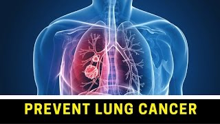 ► How to Prevent Lung Cancer ◄ Lung Cancer █ Causes and Solutions ✔