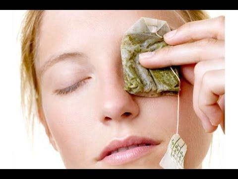 علاج التهاب العين بأكياس الشاي!