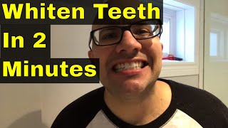How To Whiten Teeth In 2 Minutes Guaranteed Whiten Teeth Vloggest