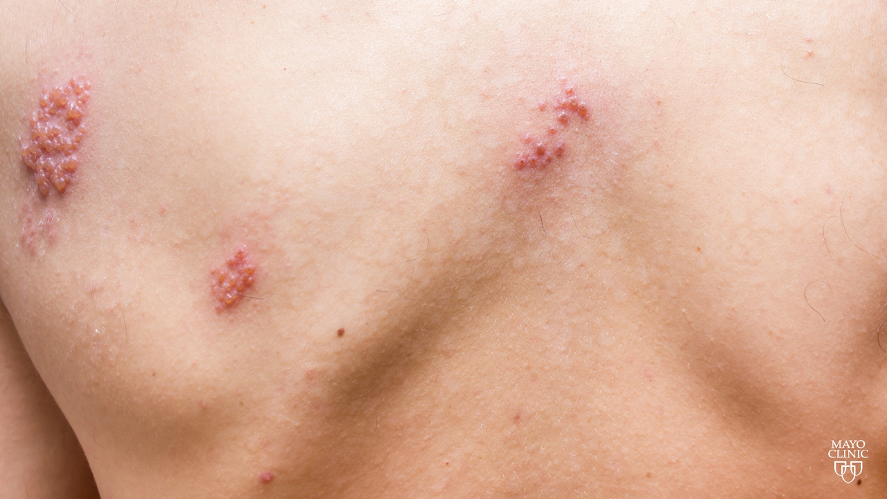 Shingles: A Serious and Painful Disease