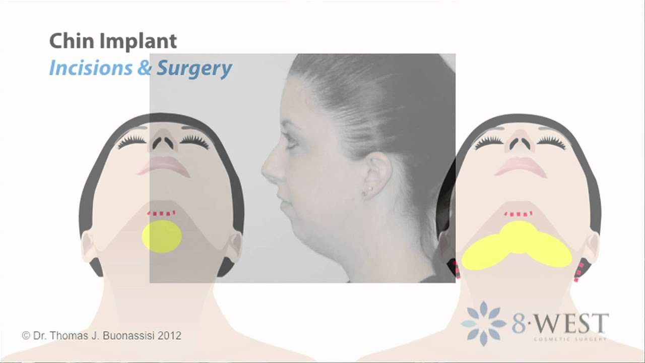 Beautiful Implant Before And After Animation Elaboration ...