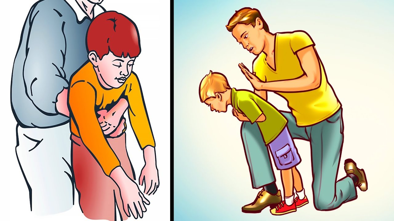 How To Help A Choking Child Or Adult  Everyone Must Know