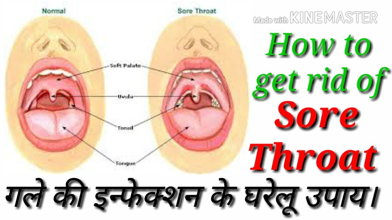 How to Cure a Throat Tips and Recommendations 89