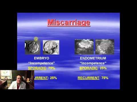 Webinar Geoffrey Sher, MD Recurrent Miscarriage