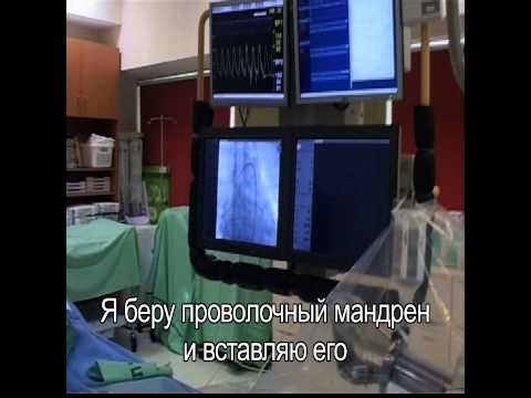 Катетеризация и стентирование