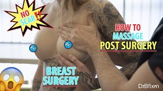 Breast Augmentation Surgery: THE BEST SCAR!
