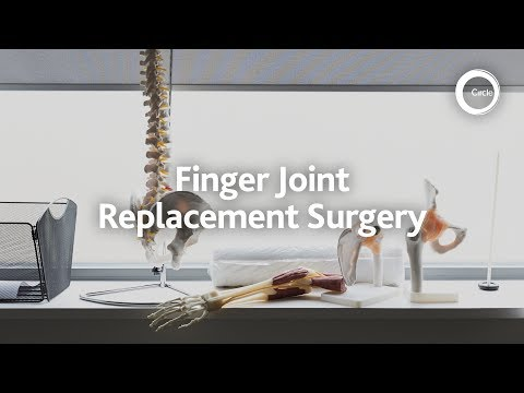 Finger joint replacement surgery