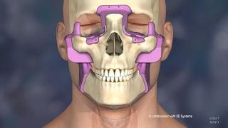 Facial transplant American