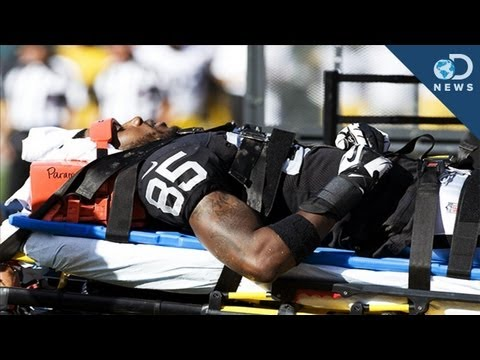 Can Sports Concussions Be Prevented?
