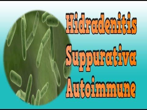 Hidradenitis Suppurativa Autoimmune, Hs Disease Treatment, Inflammation Of A Sweat Gland
