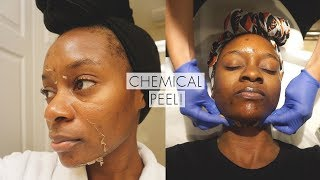 CHEMICAL PEEL FULL PROCESS! | Remove Dark Marks Acne Scars and Acne with Chemical Peel