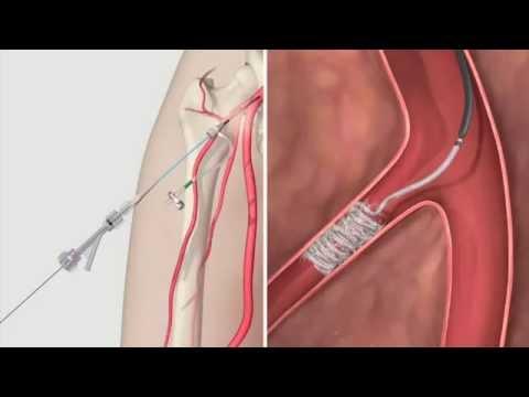 Intervencionismo Radiológico | Retracta - YouTube