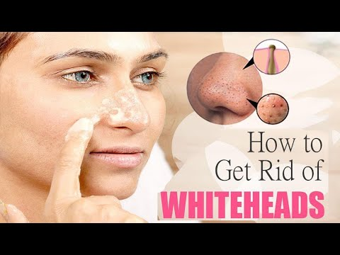 how-to-get-rid-of-whiteheads-on-face-||-home-remedies-for-whiteheads