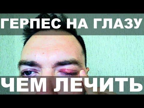 Герпес на глазу чем лечить / Я мог потерять зрение / Герпес на губах