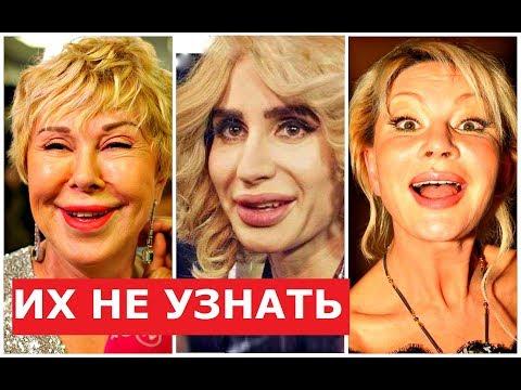 ЗВЁЗДЫ после НЕУДАЧНОЙ ПЛАСТИКИ! - Видео онлайн