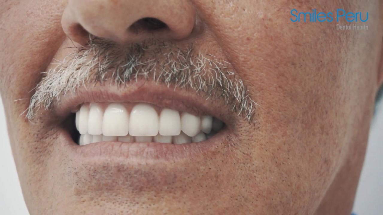 Prótesis Híbrida Sobre Implantes Dentales Preguntas