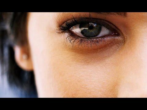 Отеки под глазами – причины возникновения, как убрать