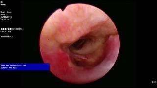 видео Амилоидоз