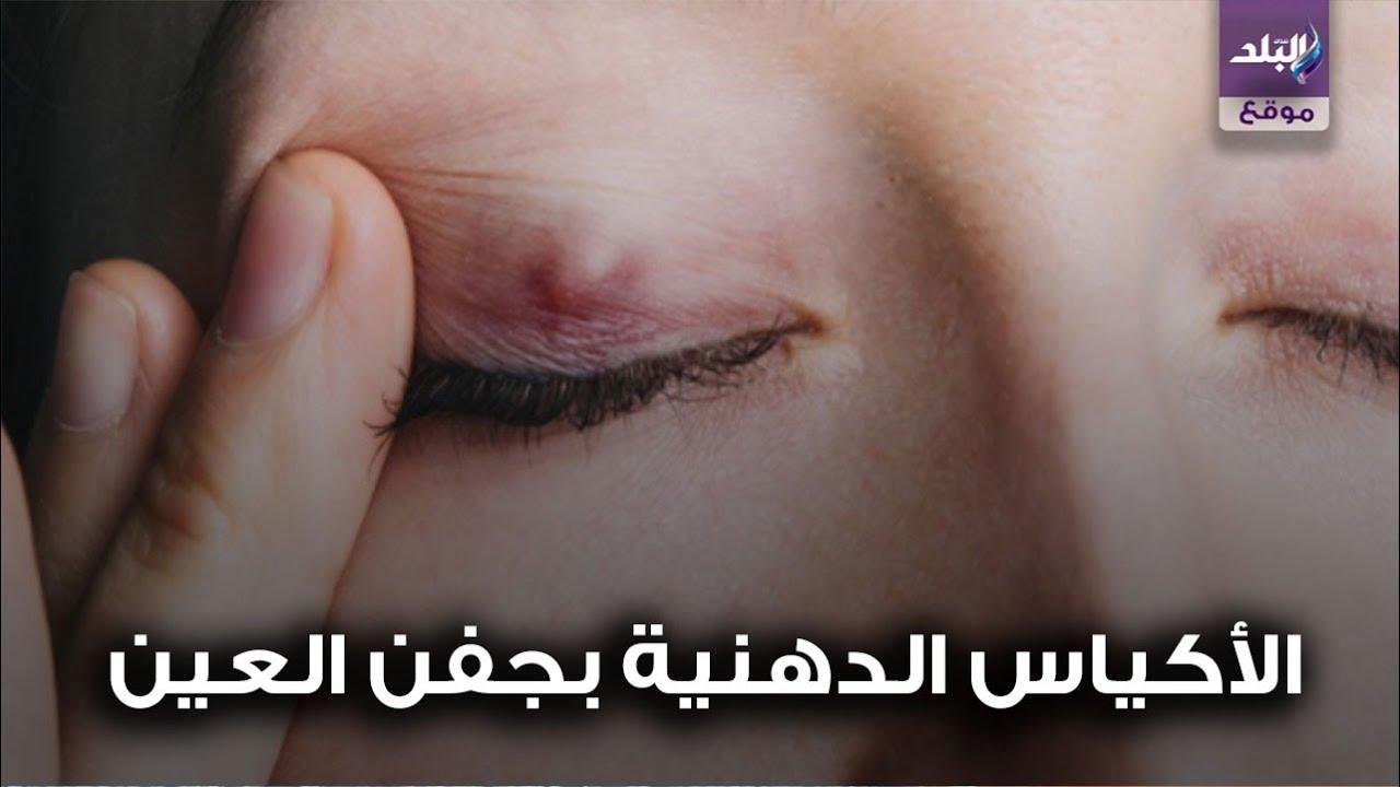 تسبب العمى أسباب الأكياس الدهنية في جفن العين Youtube