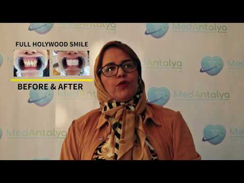 Hollywood Smile - The Best Smile Makeover - Asma's 20 crowns
